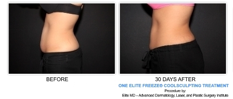 Elite Freeze and CoolSculpting Before and After Pictures