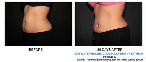 Elite Freeze and CoolSculpting Before and After Gallery