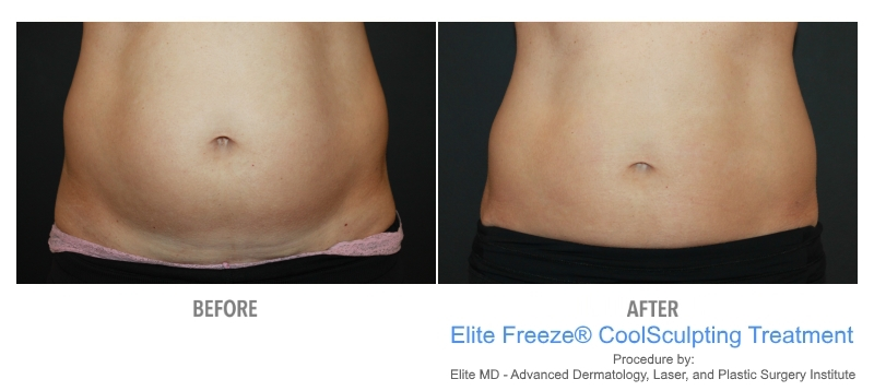 elite-freeze-before-after